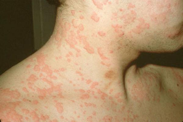 Bệnh viêm da dị ứng có lây không?