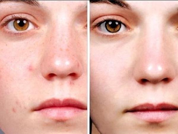 Chữa trị viêm da dị ứng ở mặt sao cho hiệu quả