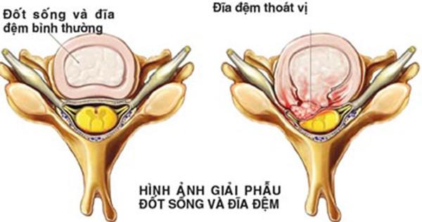 Những giai đoạn của bệnh thoát vị đĩa đệm